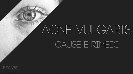 Acne vulgaris: cause e rimedi