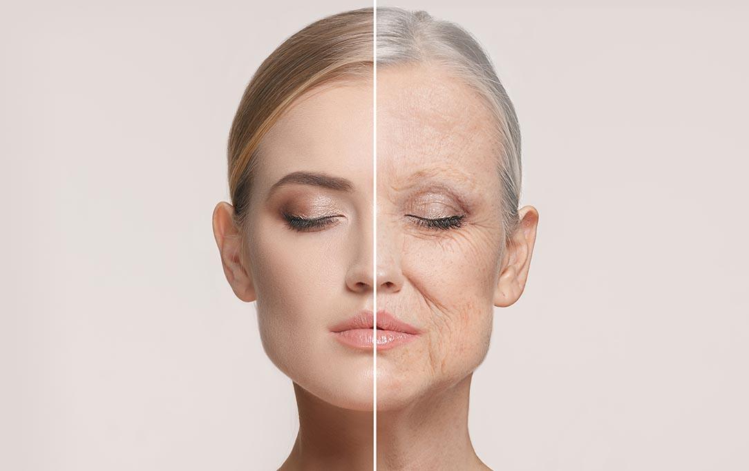 Proteggere la pelle e prevenire le rughe: 5 consigli che non sapevi