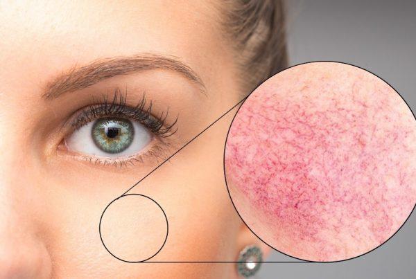 Cosa devi sapere sull'iperpigmentazione?